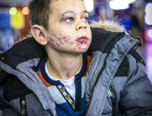 TVA: Un garçon mutilé en Ukraine soigné à Montréal